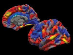 Brains Of ADHD Patients Are Found To Be structurally Diverse